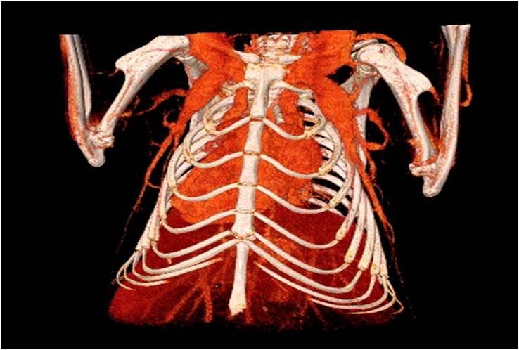 心血管1.jpg